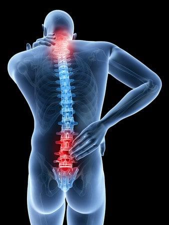 un dessin illustrant des douleurs chroniques du dos