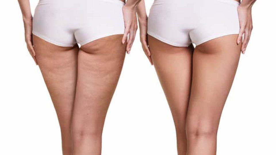 la cellulite chez les femmes